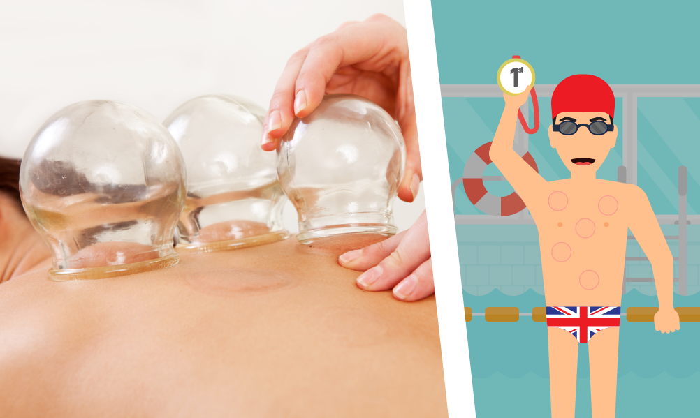 Cupping Therapy Olympics